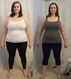 bergen_county_nj_weight_loss_client